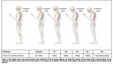 postura cellulare cervicale